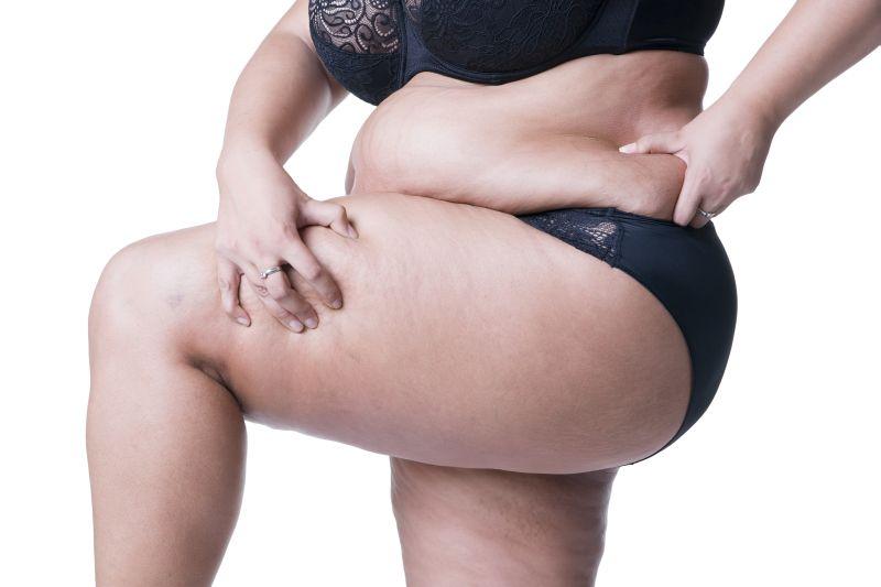 Füllige Frau in schwarzem Spitzendessous greift sich in die Hüfte
